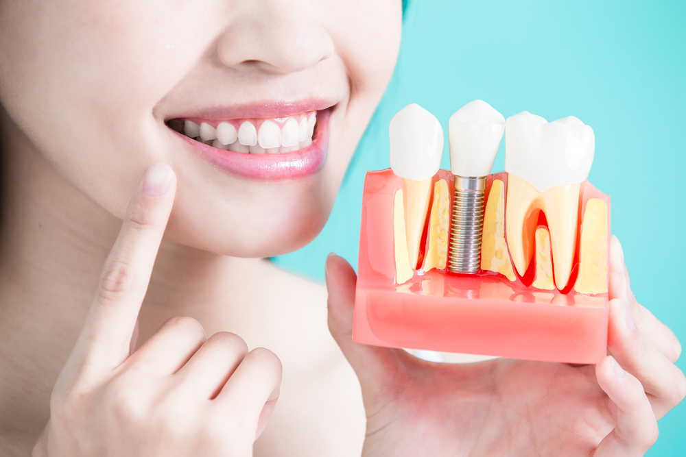 dental implants in gurgaon