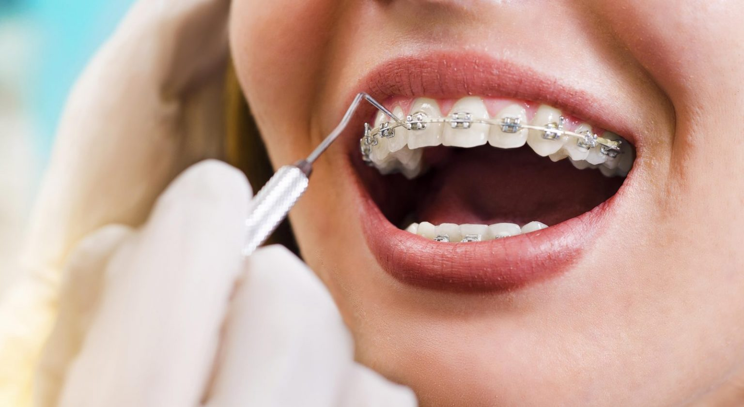 right age for braces