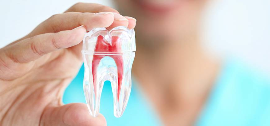 root canal treatment in palam vihar