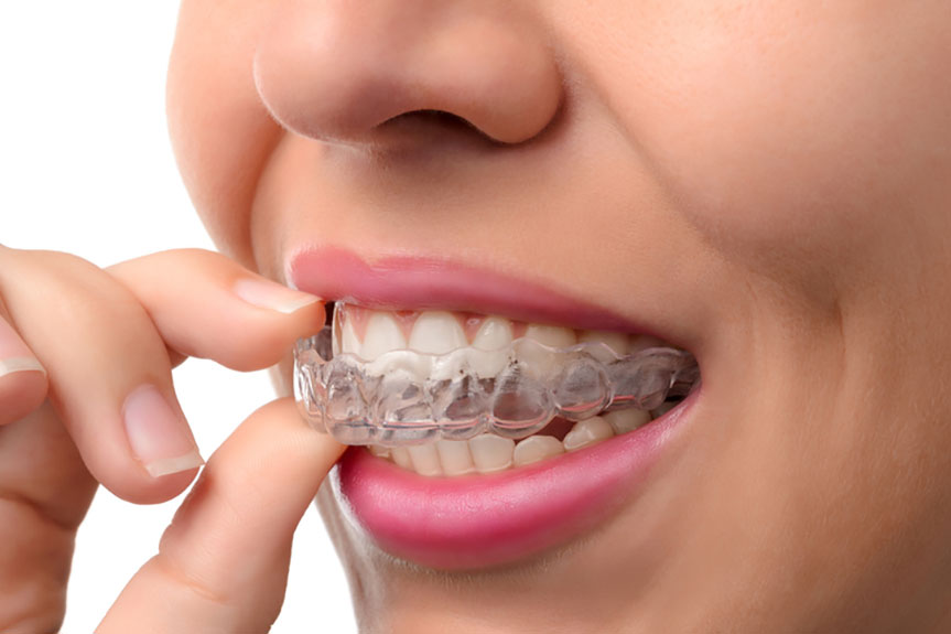 invisalign braces in gurgaon