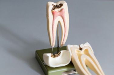 Root-canal-treatment-in-Gurgaon